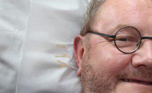 Acupuncture, Médecine Alternative